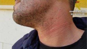 L'home es va autolesionar el coll per a que tinguera veracitat la seua declaració davant dels agents