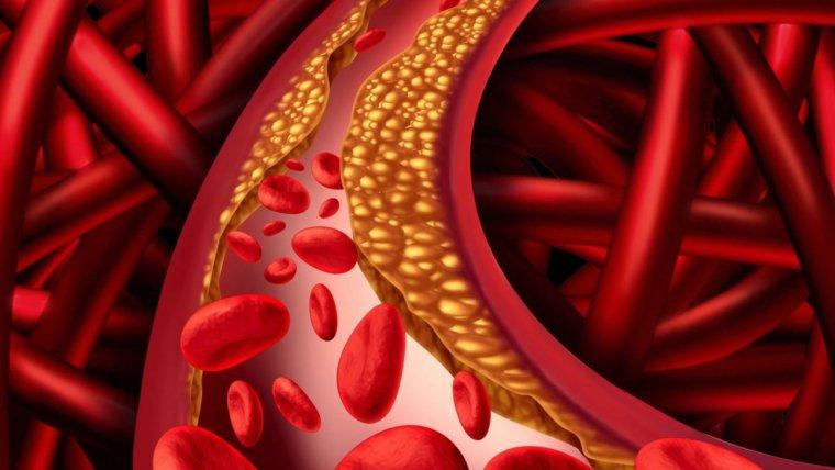 Cual es la causa de la hipertension arterial
