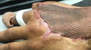 Así quedó la mano de Antoine tras la cirugía