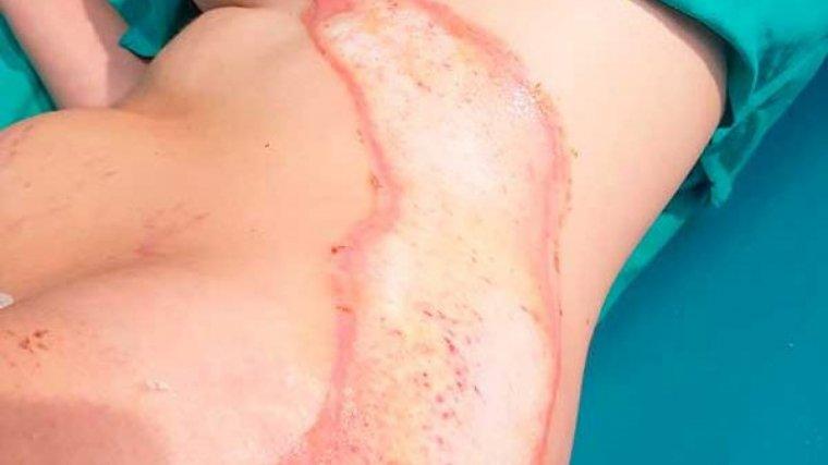Imagen de las quemaduras sufridas por la mujer durante la cesárea