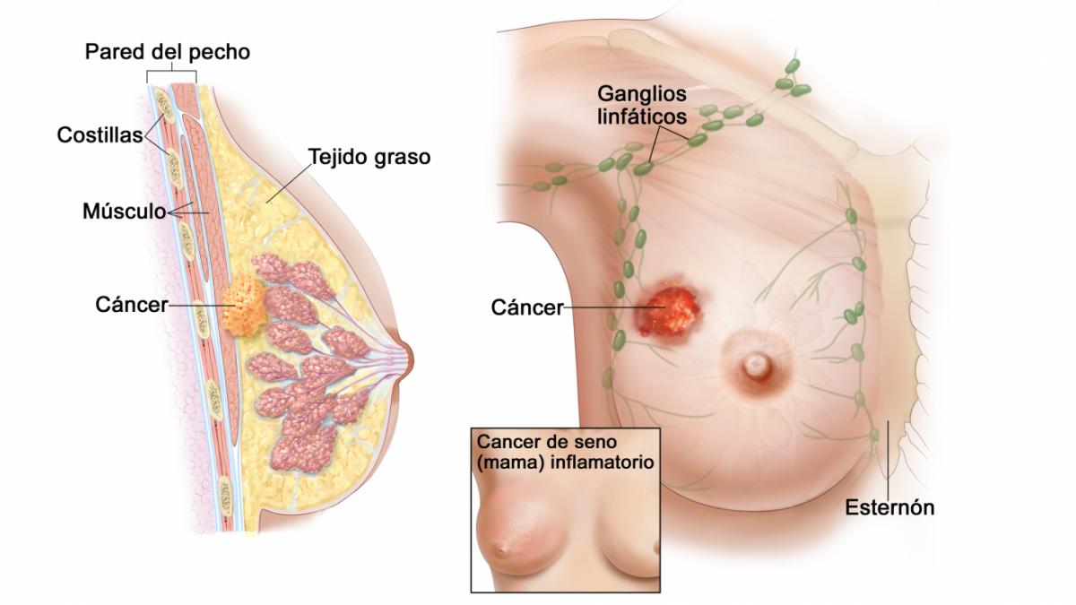 Cáncer de mama: qué es, síntomas, tipos, causas y prevención
