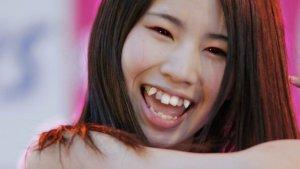 Yaeba, o la moda de separarse los dientes para que parezcan naturales.