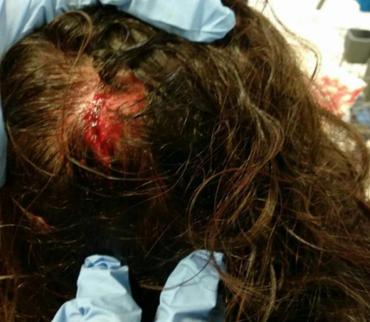 Imatge de la ferida
