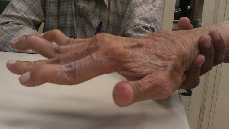 que es la artritis reumatoide y cuales son sus sintomas