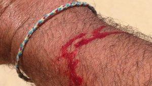 La víctima ha denunciat haver patit un tall en un braç