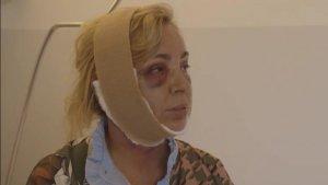 Imagen de Carmen Borrego tras la operación