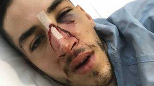 Las lesiones que Johnny M. G. sufrió en la cara tras la agresión