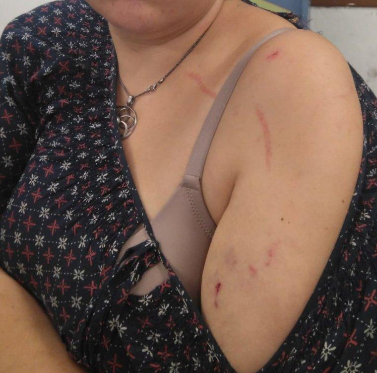 L'Eva, agredida a Torrefarrera per posar llaços grocs