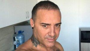 Dinio ha pasado por una pesadilla tras un injerto capilar ilegal