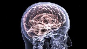 La esclerosis múltiple es una enfermedad neurológica degenerativa.