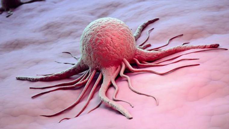 La UdG ha utilitzat la impressió 3D per tractar un tipus de càncer de mama dels més agressius