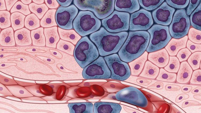 las heces frecuentes pueden ser un signo de cáncer de próstata