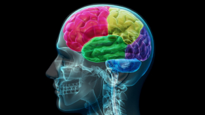 Accidente cerebrovascular (Ictus)
