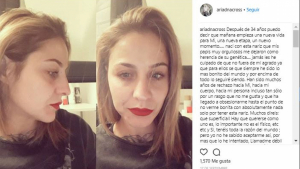 Ariadna habla sobre su operación de nariz