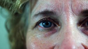 El síntoma principal de las cataratas es la visión nublada, borrosa o tenue.