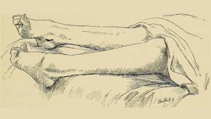 La Ataxia de Friedreich típicamente causa síntomas en las extremidades inferiores.