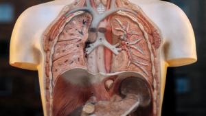 Los síntomas de la fibrosis quística afectan especialmente a los pulmones.