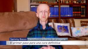 Sammy Basso, niño anciano