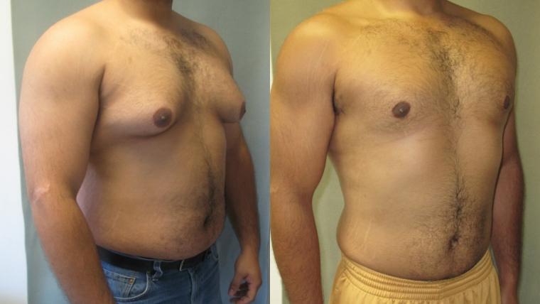 crecimiento de senos en un hombre síntomas