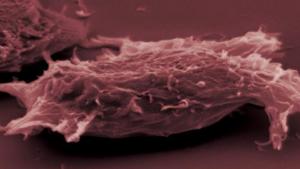 Aquest nou tractament experimental ataca i bloqueja la proteïna MYC que es localitza dins de les cèl·lules tumorals