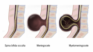 Espina bífida oculta, meningocele y mielomeningocele.