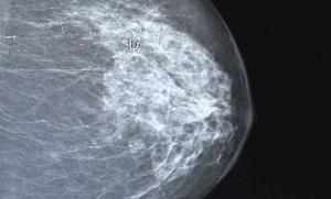 imatge arxiu càncer de mama