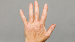Vitíligo - Síntomas, causas y tratamiento