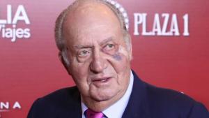 El hematoma del rey Juan Carlos I se debió a una operación de cáncer de piel