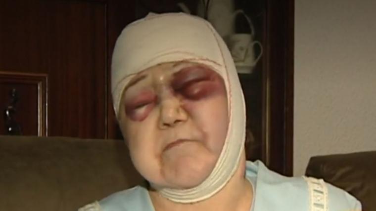 Dona agredida a l'Hospitalet