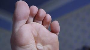 ¿Qué es una ampolla? Cómo curar y prevenir las ampollas en los pies