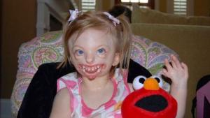 Sophie fue operada 30 veces a lo largo de su vida