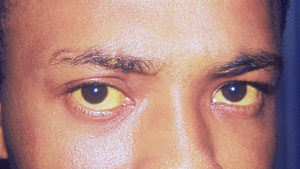 Bilirrubina alta e ictericia: causas, síntomas y tratamiento