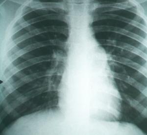 Radiografia que mostra un cas de fibrosi pulmonar causada per la febre de la vall de San Joaquín