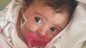 La Matilde pateix artròfia muscular espinal de tipus 1