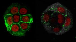 Els investigadors han estudiat cèl·lules de pacients sans i d'altres amb patologies