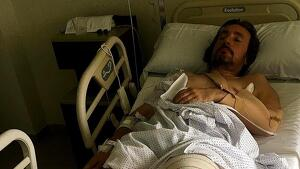En Daniel s'ha trencat la tíbia i fracturat l'húmer i el pont del nas per una caiguda d'un comboi de Renfe