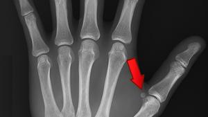 Huesos sesamoideos de la mano, del pie y otras partes del cuerpo