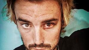 Logan Sampedro mostró su traumatismo en el ojo