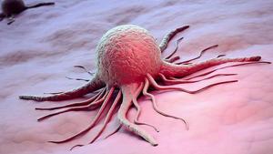 Cèl·lula càncer mama