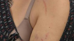 L'agressió va tenir lloc el passat divendres a Torrefarrera.