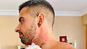 Juan Antonio publicó una imagen de su herida