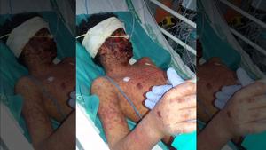 Lucas hospitalizado con quemaduras