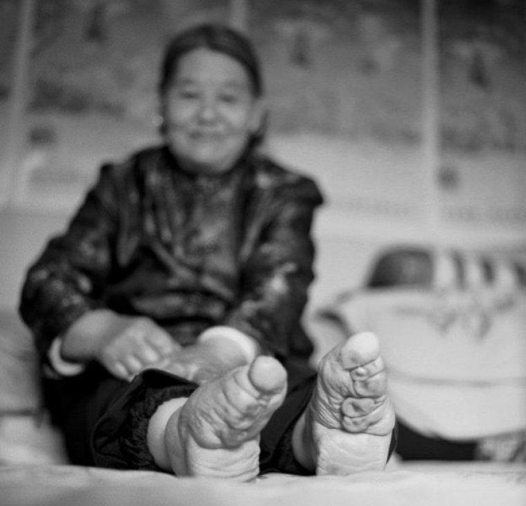 Su Xi Rong, una de las últimas mujeres con los pies rotos.