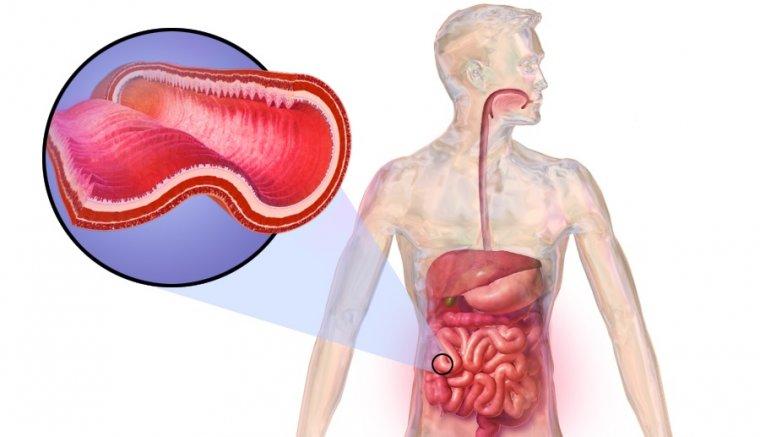 Enfermedad de Crohn: qué es, causas, síntomas y tratamiento