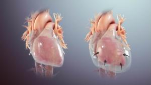 La pericarditis puede progresar a derrame pericárdico y eventualmente a taponamiento cardíaco.