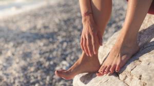 Las varices son venas inflamadas que suelen aparecer en las piernas.