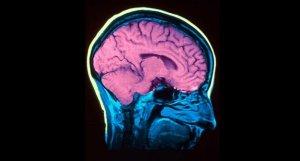 Descobreix 10 curiositats sobre la bipolaritat que probablement ignoraves