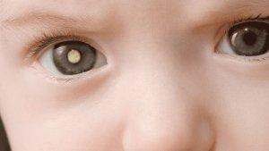 L'hospital ha desenvolupat un tractament amb un virus per al càncer infantil de retina