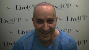 Víctor Sandoval s'ha sotmès a una operació de cirurgia estètica