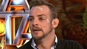 Álex Casademunt reapareció en 'Hora Punta' con lesiones en la cara